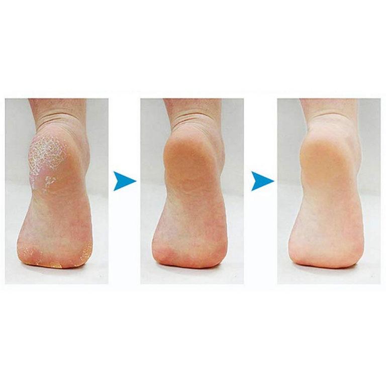 removedor de calos callus clean funciona 5 (1)